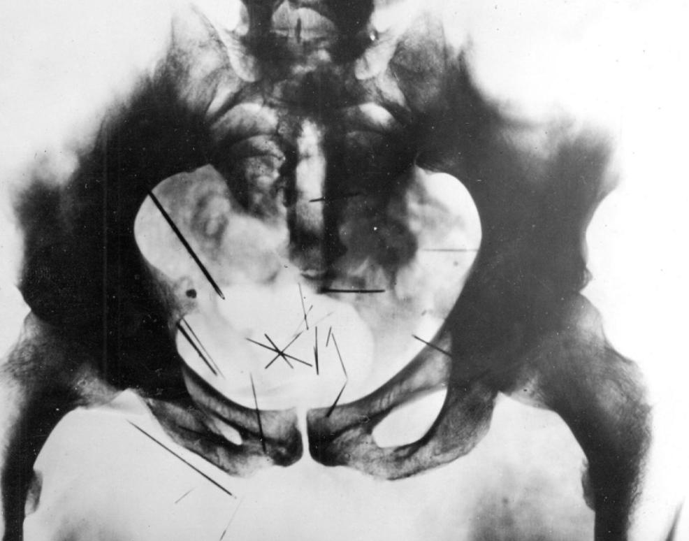 Les rayons X montrent les 27 aiguilles retrouvées dans le bassin et le périnée d'Albert Fish - Cultea