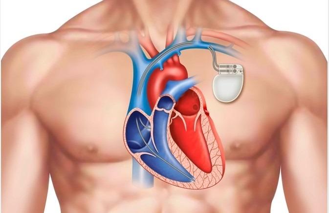 L'histoire du stimulateur cardiaque, plus connu sous le nom de pacemaker