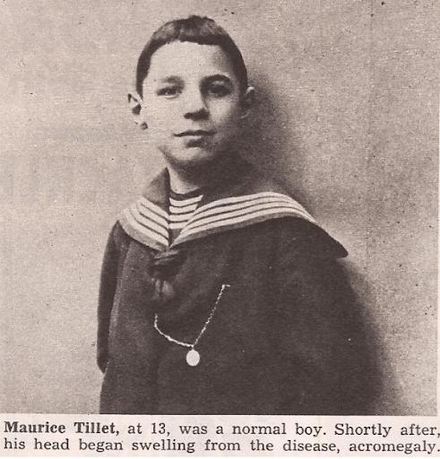 Maurice Tillet avant qu'il ne soit atteint d'acromégalie - Cultea
